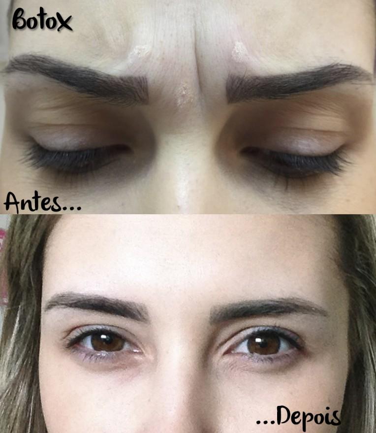 5-botox